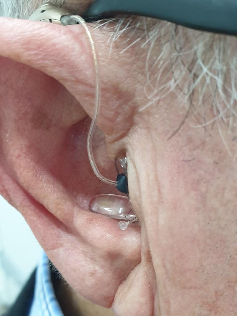 adaptar unos audífonos