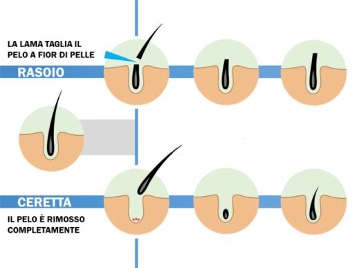 Epilazione corpo con cera Lecce