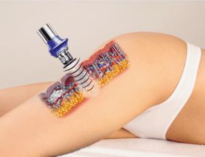 masaż antycelulitowy poznań cena
