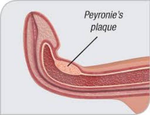 choroba peyroniego forum