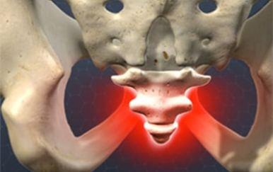 ból kości ogonowej promieniujący do pośladka