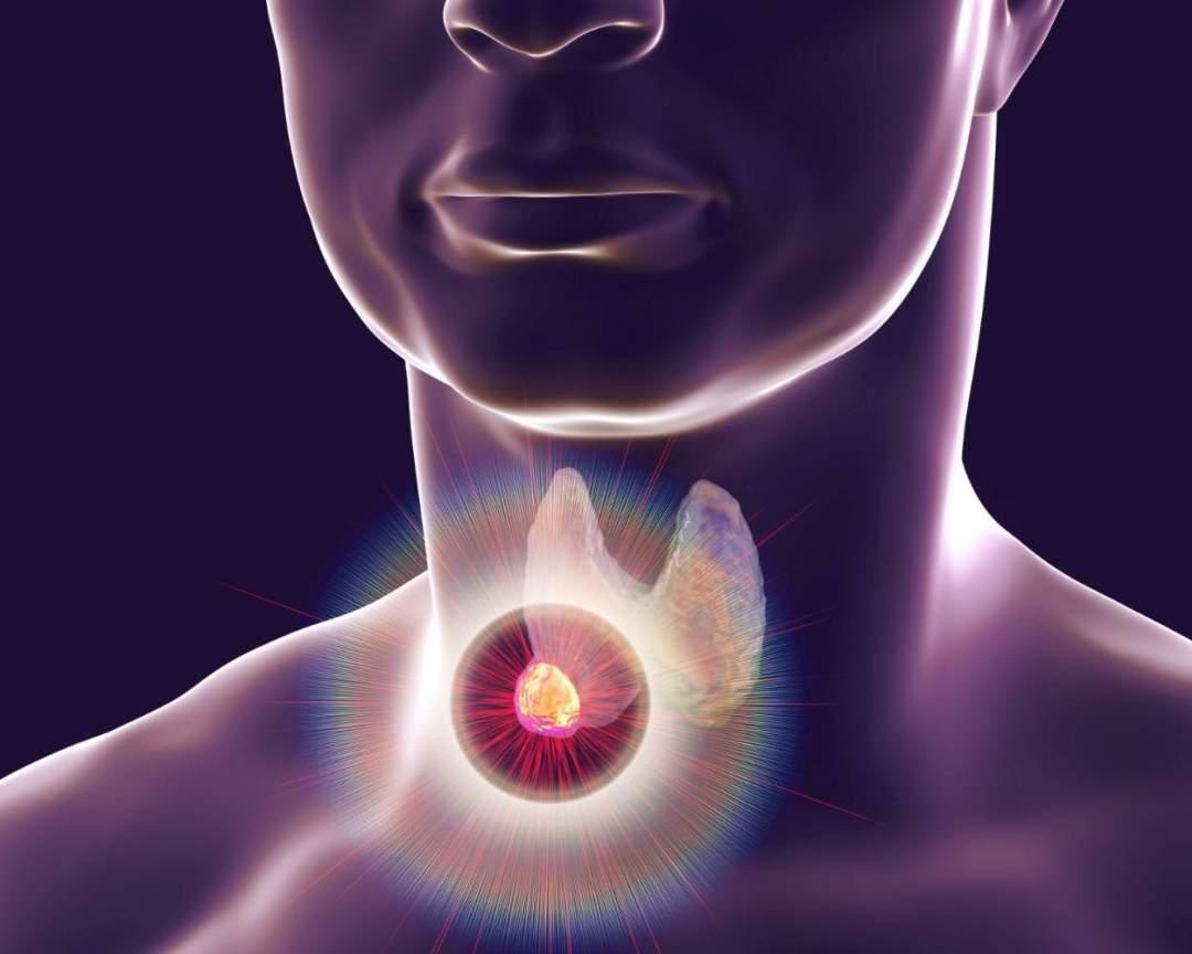 Thyroid & Parathyroid Surgery