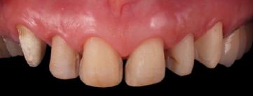 mockup-dental-mejorar-sonrisa-caso-clinico-6