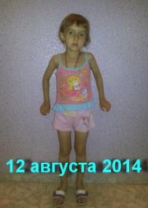 Полина Левчук - пациентка Арутюнянц М.А.