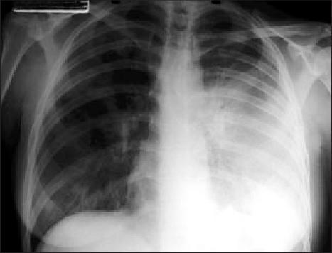Radiografía de Tórax de un Paciente con Peste Neumonica