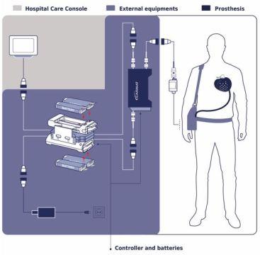 Implantan el primer Corazón Artificial con éxito