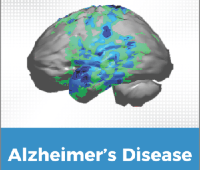 Symptoms Of Alzheimers Disease And Other Dementias May Include Any Number Of The Following