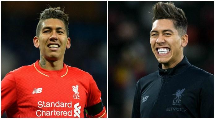 Perbandingan Bintang Sepak Bola Sebelum Dan Sesudah Memperbaiki Gigi