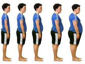 Obesidad celiaquía