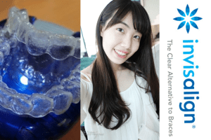 Invisalign隱適美透明牙套-矯正前後,三年來的牙齒變化   Overview of My Invisalign Treatment-Before & After (3 Years)