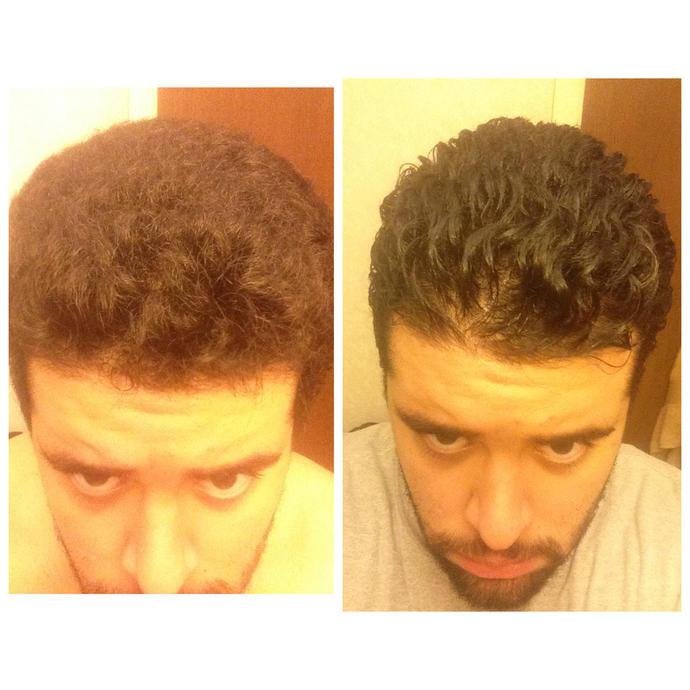Do How Nappy Hair