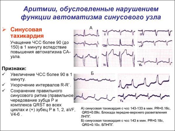 Аритмии ординаторам. Схема анализа ЭКГ - презентация онлайн