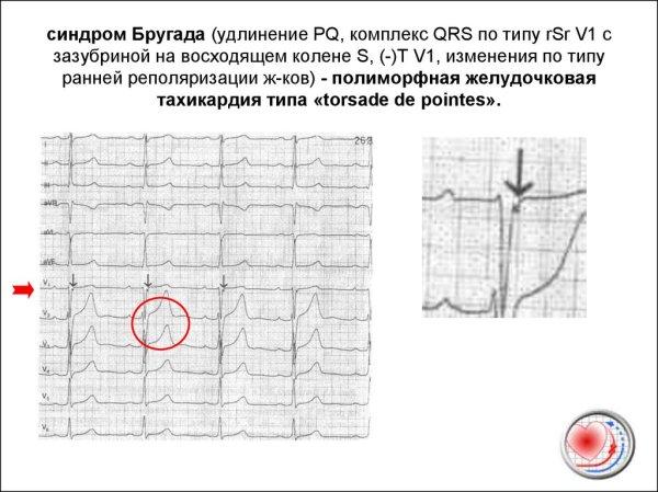 Аритмии ординаторам. Схема анализа ЭКГ - online presentation