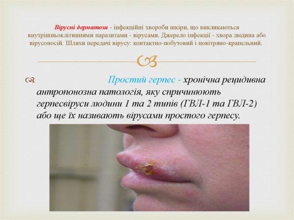Вірусні дерматози - презентация онлайн