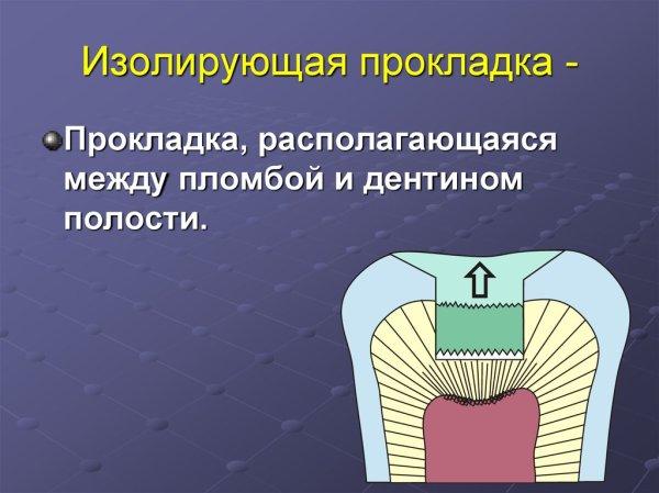 Стоматологические пломбировочные материалы online