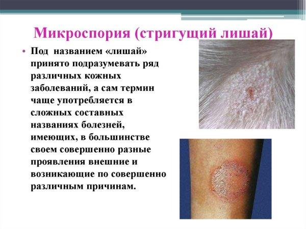 Заболевания кожи презентация онлайн
