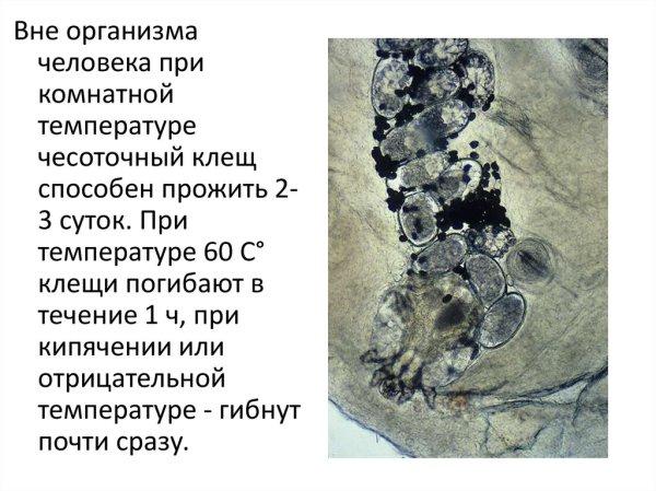 Кожные заболевания чесотка стригущий лишай герпес