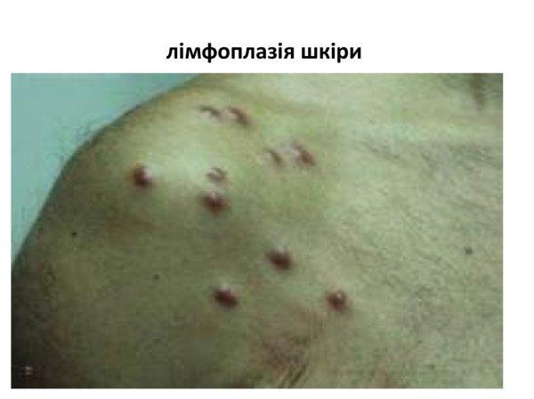 Дерматозоонози. Хвороби, спричинені паразитами людини і ...