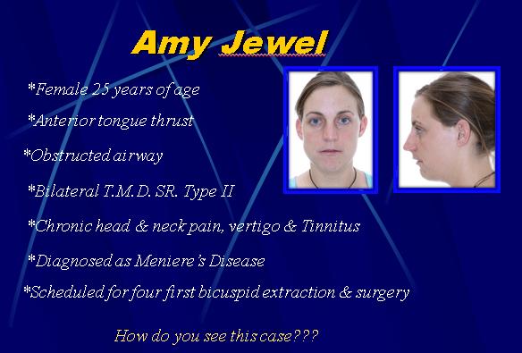 Amy Jewel