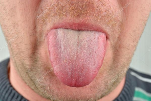 На языке трещинки: Трещины на языке – норма или патология ...
