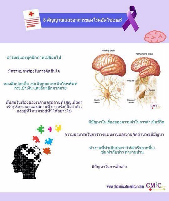 Alzheimer's Thai version