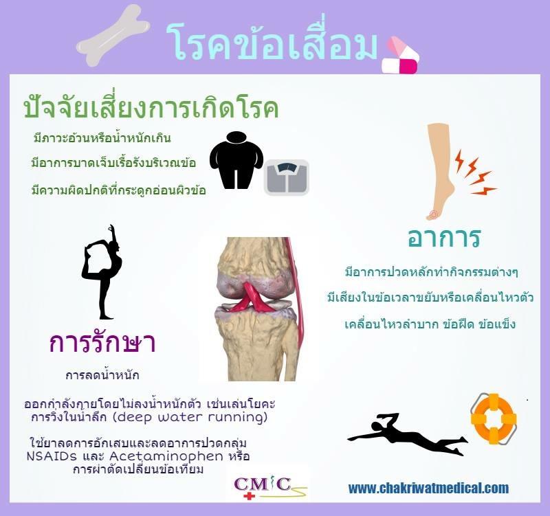 Osteoarthritis Thai