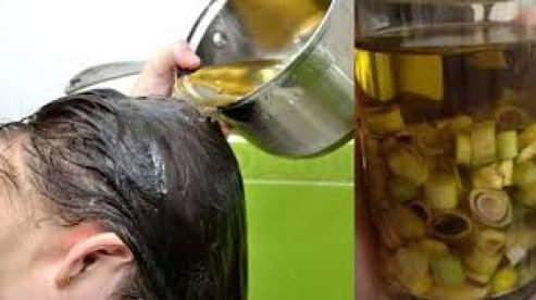 Cách trị gàu hiệu quả tại nhà bằng dầu oliu và sả