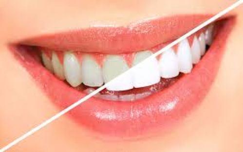 Cách làm trắng răng là cách thích hợp và hiệu quả nhất.