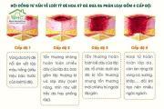 4 độ loét tỳ đè và cách chăm sóc các vết loét tỳ đè