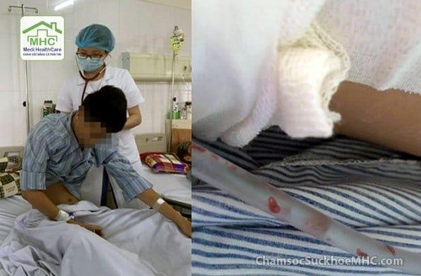 bị nhiễm sán lá phổi sán lá phổi bệnh viện nhiệt đới trung ương  Bác sĩ giật mình khi thấy sán lá phổi bò lúc nhúc trong phổi nam thanh niên b    nhi   m s  n l   ph   i s  n l   ph   i b   nh vi   n nhi   t      i trung     ng