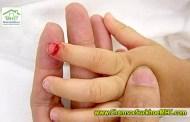 Hướng dẫn sơ cứu bé bị dập ngón tay, ngón chân