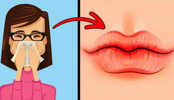 Đừng chủ quan, hãy nhớ những dấu hiệu của đôi môi cho thấy sức khỏe đang 'kêu cứu' bạn doan benh qua doi moi moi kho nut