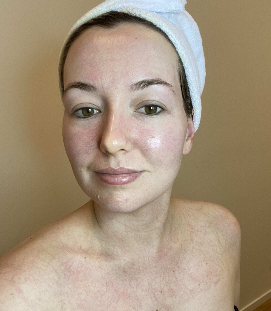 Immediately after Lymphatic Skin Therapy