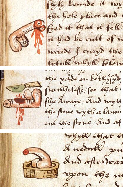 John Arderne, Treatise on Surgery, England ca. 1532. British Library, Sloane 776, fols. 41v, 71v, 203v