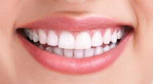 Dental Implants Periodontist CHARLOTTE NC