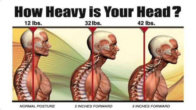 forward head posture just how heavy