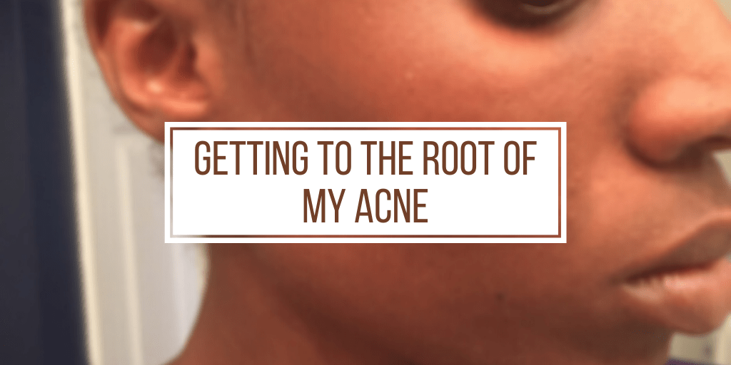 Getting to the root of my acne