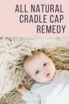 All Natural Cradle Cap Remedy