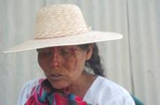 Mujer campesina herida (Foto prensa de Cochabamba, 11, 1, 2007)
