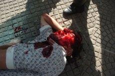 Heridos producto del enfrentamiento (Foto prensa de Cochabamba, 11, 1, 2007)