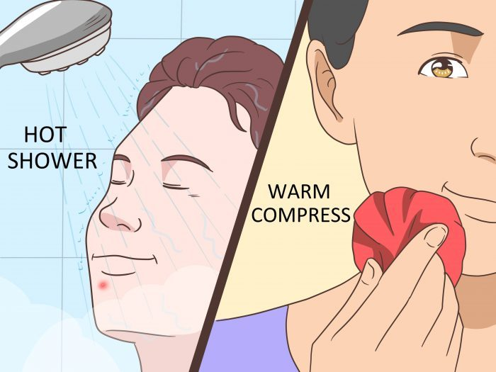 Get-Rid-of-a-Pimple-Step-11-Version-7