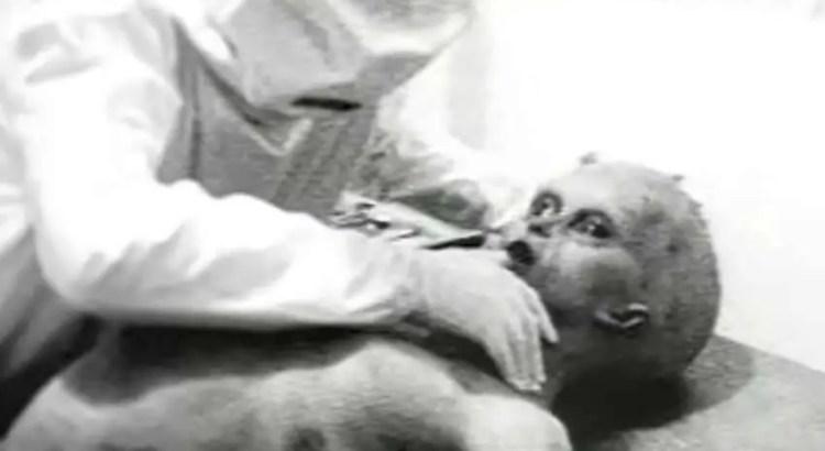 Foto da famosa autópsia alienígena de 1947
