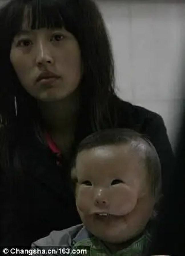 Yi Lianxi contou que foi submetida a três ultrassons comuns e a um com Doppler durante a gravidez, porém nenhuma deformação foi detectada.