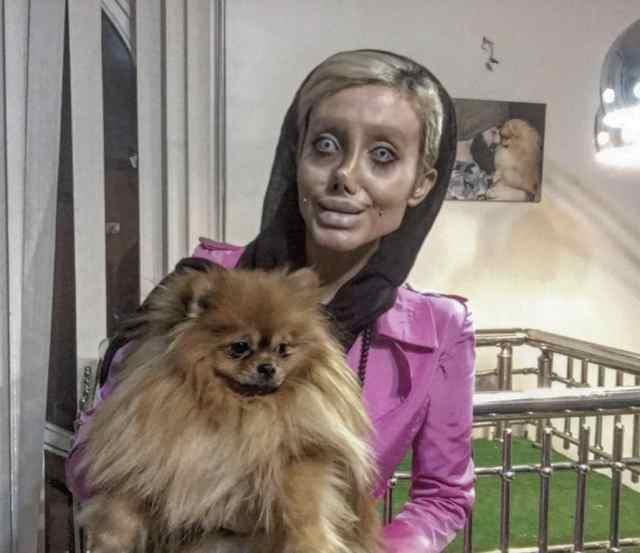 Woman Got 50 Surgeries To Look Like Angelina Jolie