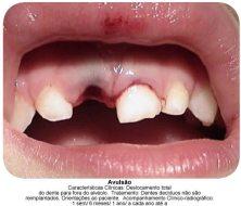 trauma dentário2