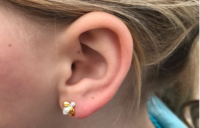 When Is The Right Time To Pierce Your Child S Ears Chelseamamma