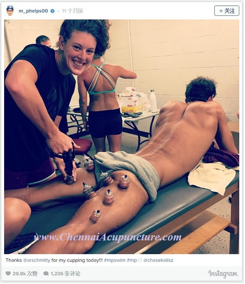 Screenshot of U.S. swimmer Michael Phelps' instagram account shows him receiving the cupping therapy of traditional Chinese medicine.