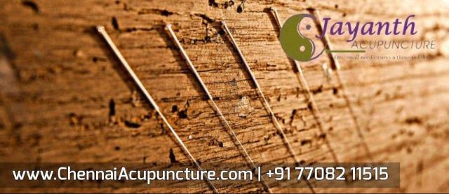 Acupuncture In Chennai