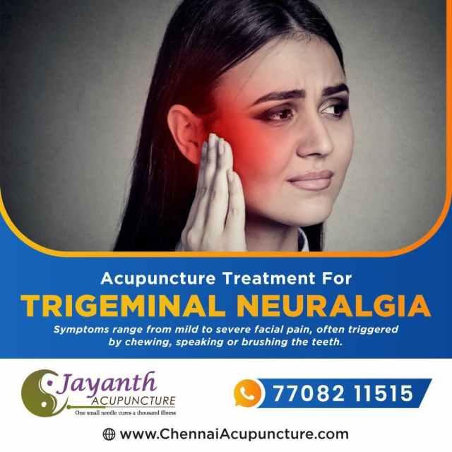 AcupunctureTreatmentForTrigeminalNeuralgia