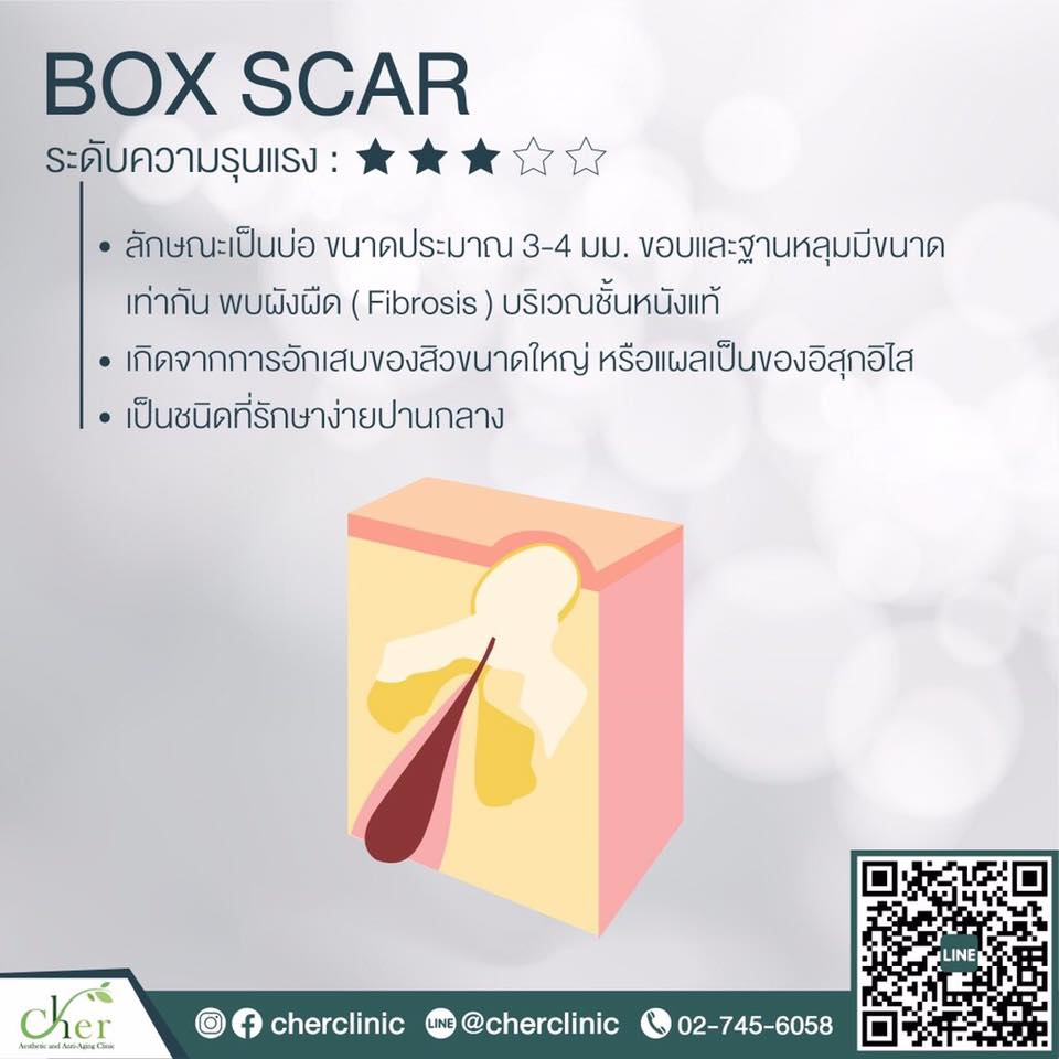 box scar